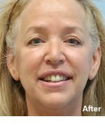 Upper eyelid surgery/Lower eyelid surgery