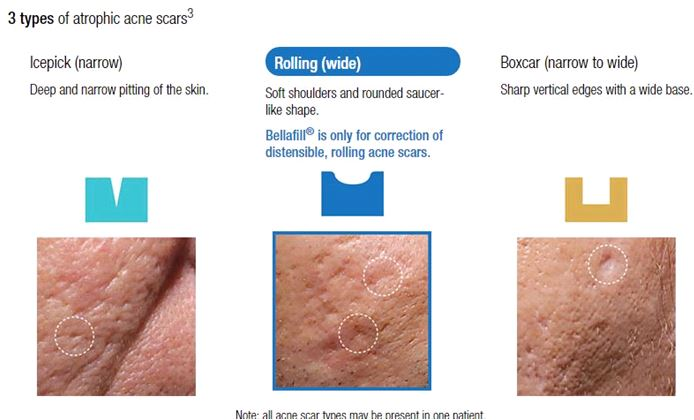 Bellafill, Permanent Facial Filler for Acne Scarring | mw ...  |Acne Scar Types