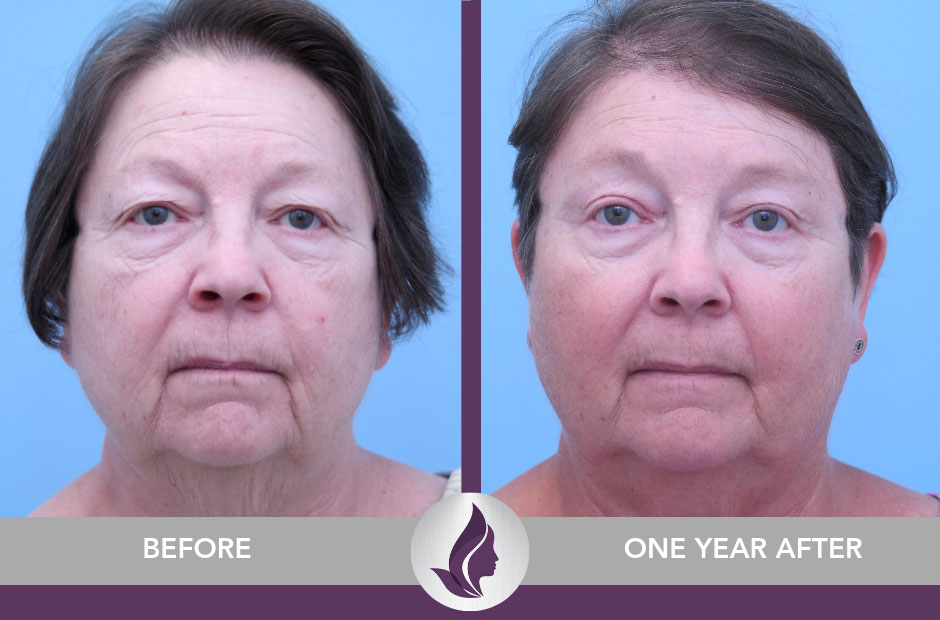 Brow Lift & Blepharoplasty Before & After