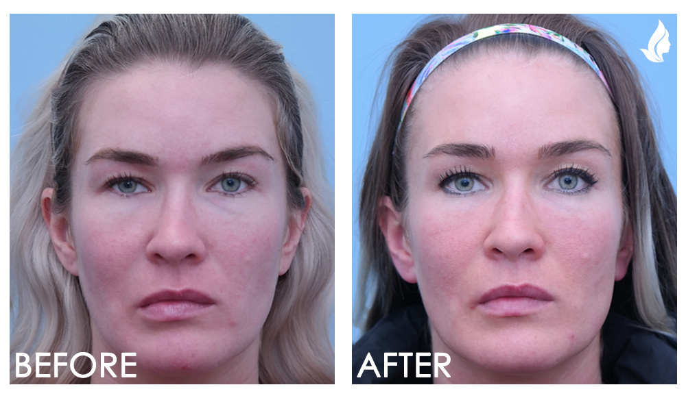 Before and Afters for Botox for Synkinesis