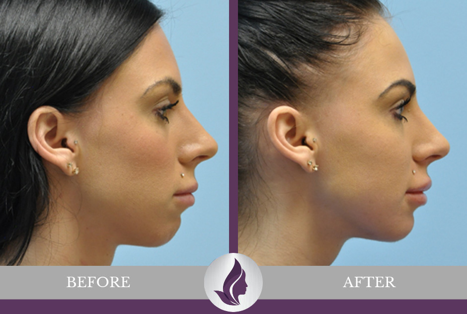 Facial Implants Before & After